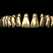 libreria dental adaptada para meshmixer various libreria dental meshmixer anatomia dental stl dental dientes 3d dientes st libreria perez giugovaz