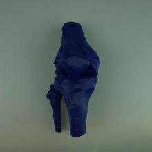 joelho proximal tíbia fratura educação joelho tibia fratura xray