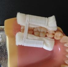 rotolo cotone titolari suportes rolo algod pinshape rolete de algod suporte algod rolo rolete dentes dente odontologia relativo isolamento dentistica dentista l'odontoiatria relativa l'isolamento i titolari rotolo cotone denti dente odontoiatria dentista