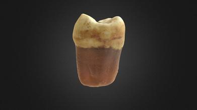 b0418 diente 1-7 - modelo 3d pablo d az jarufe ozzyoso bfbe1b3 doctorado de investigación en tuberculosis de las comunidades andinas del norte de chile entre el año 2000 ac 1450 dc investigador aryel h pacheco miranda coma de doctorado del departamento de arqueología de la bioarqueología grupo de investigación de la universidad de durham en reino unido sitio pica 8 material diente 17 superior derecha de la segunda molar modelo 3d desarrollado pablo d az msci antropólogo físico osteam ltda  - b0418 diente 1-7 - modelo 3d pablo d az jarufe ozzyoso bfbe1b3