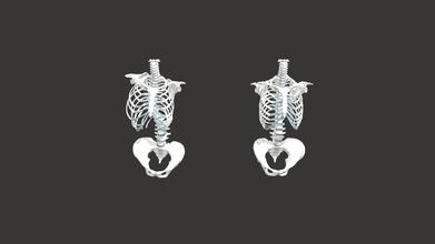 spine compare - 3d model megmoore megmoore 9d50dcc pair 3d models postioning thoracic bones spine pelvis healthy individual compared thoracic bones spine pelvis individual severe scoliosis curve - spine compare - 3d model megmoore megmoore 9d50dcc