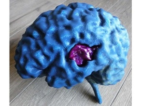 mri brain assembly brain edema educational glioblastoma human medical medical model meshmixer model mri mri scan